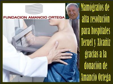 20170708112937-mamografos-donacion.jpg
